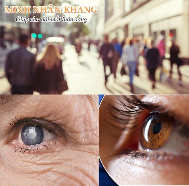 Mắt nhìn xa bị mờ là dấu hiệu cảnh báo đục thủy tinh thể giai đoạn đầu